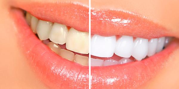 clinica-dental-doctora-llarena-tratamientos-blanqueamientos